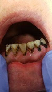 Medicaid dentist