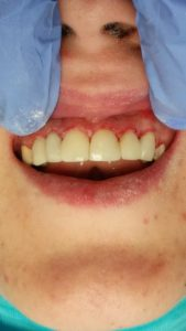 dentist in Medicaid