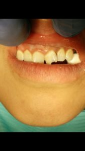 dentist in edgewood new mexico