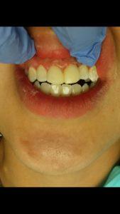 edgewood dental